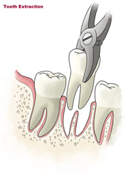 tooth-extraction-small-sm